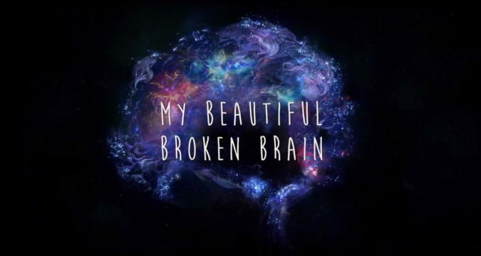 Recensie My Beautiful Broken Brain